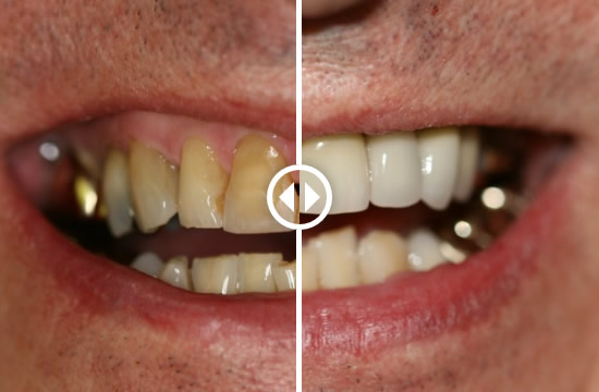 before-after-dental-gallery-02
